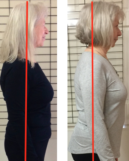 Photos of Eve Johnson showing the results of two years of Spinefulness, including a much straighter upper back.